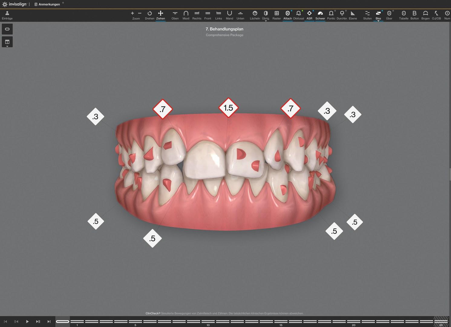 Therapie mit transparenten Zahnschienen: