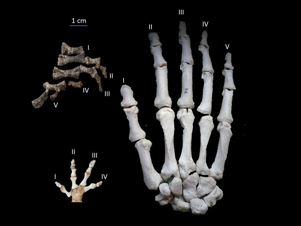 Vergleich zwischen der Hand des Metoposaurus (oben links),