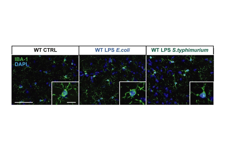 Die Anzahl der Mikrogliazellen ändert sich bei einer Stimulation des Immunsystems,