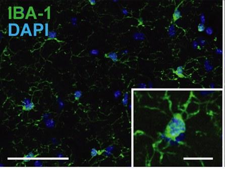 Die Anzahl der Mikrogliazellen