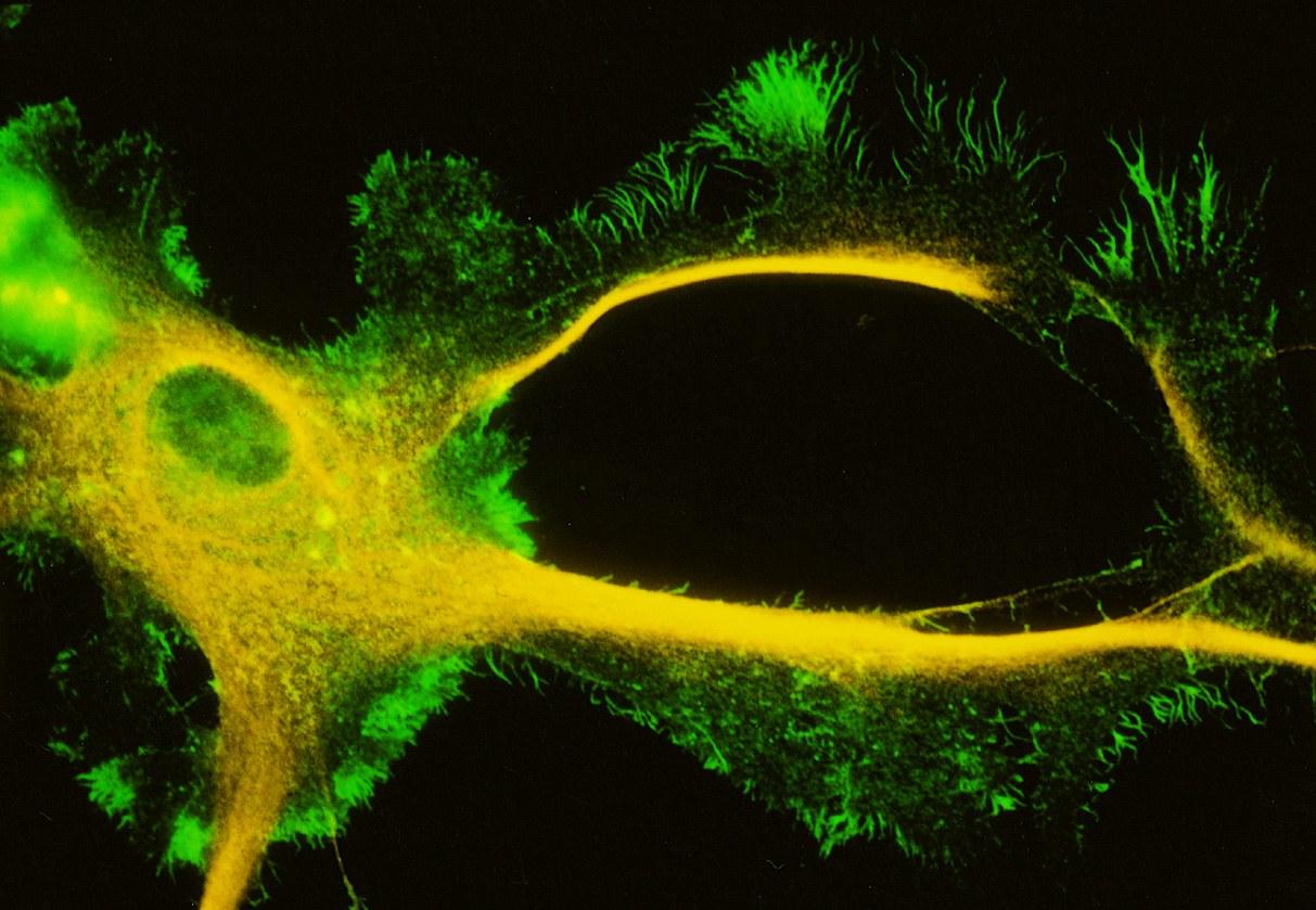 Astrozyt in Zellkultur:
