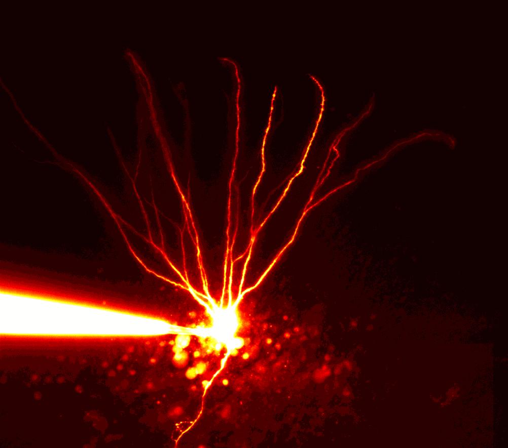 Körnerzelle aus dem Hippokampus einer Ratte: