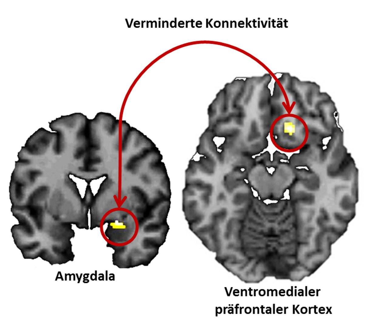 Neuronale Mechanismen der Einprägung negativer Erfahrungen:
