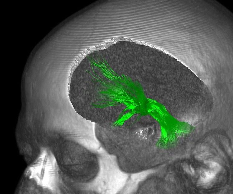 Hirnscan eines Patienten:
