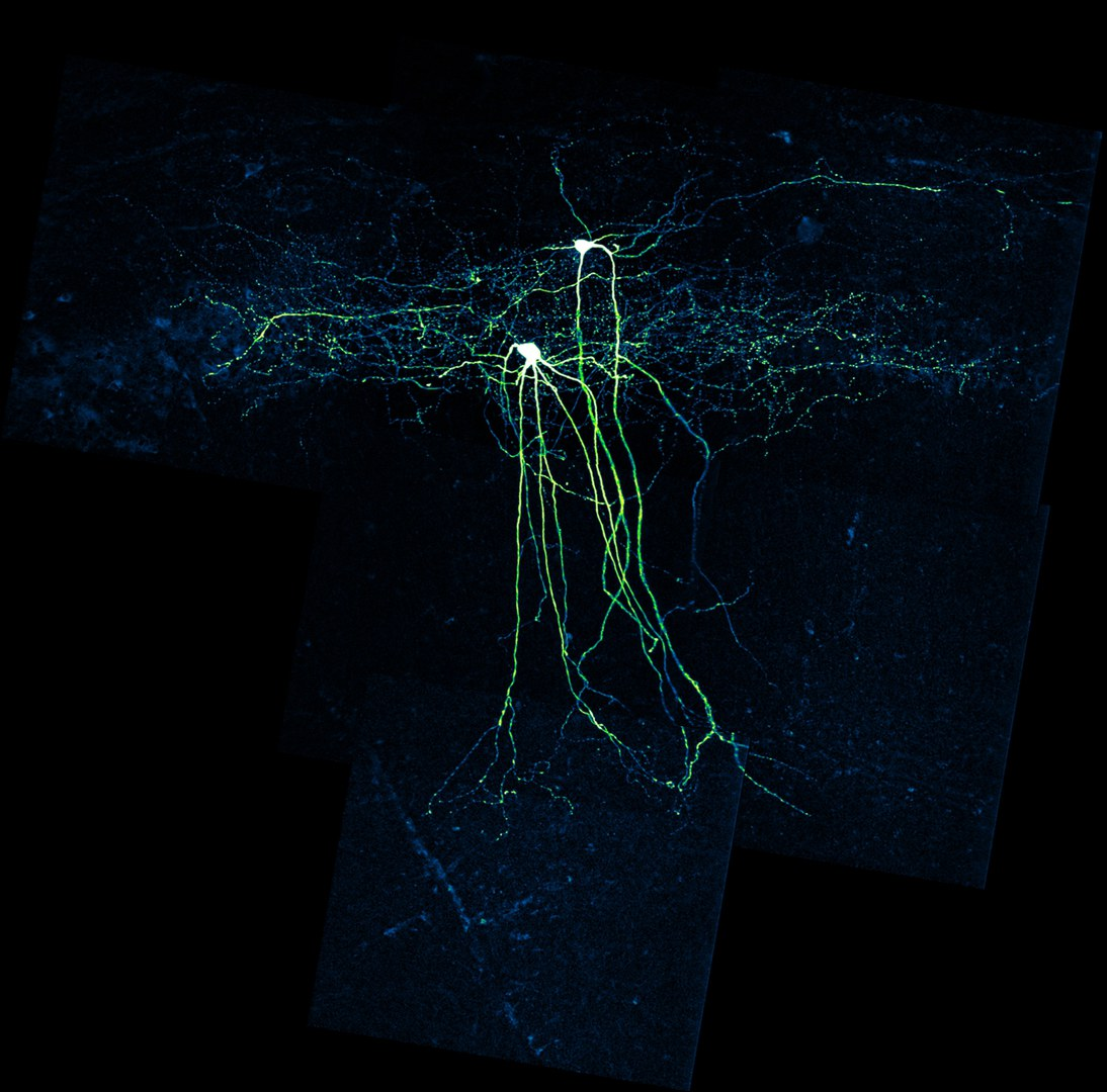 interneuron neu.jpg