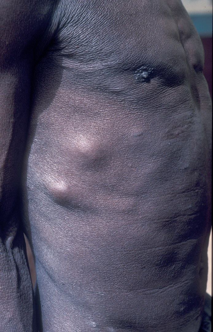 Onchoknoten Haut.jpg