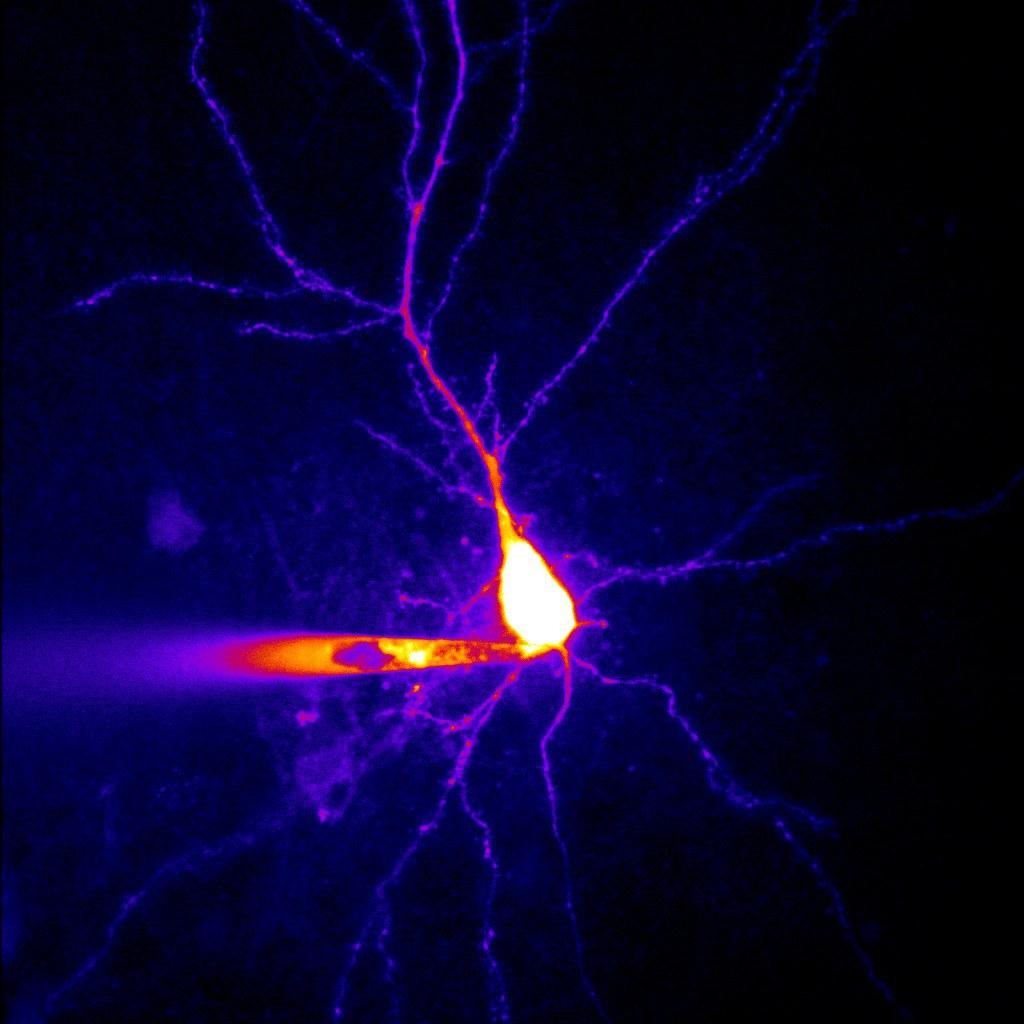 So sieht eine Nervenzelle aus dem Hippocampus einer Ratte aus: