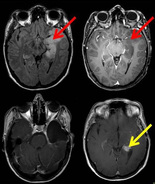 Bilder des Gehirns einer Patientin mit einem Gliom