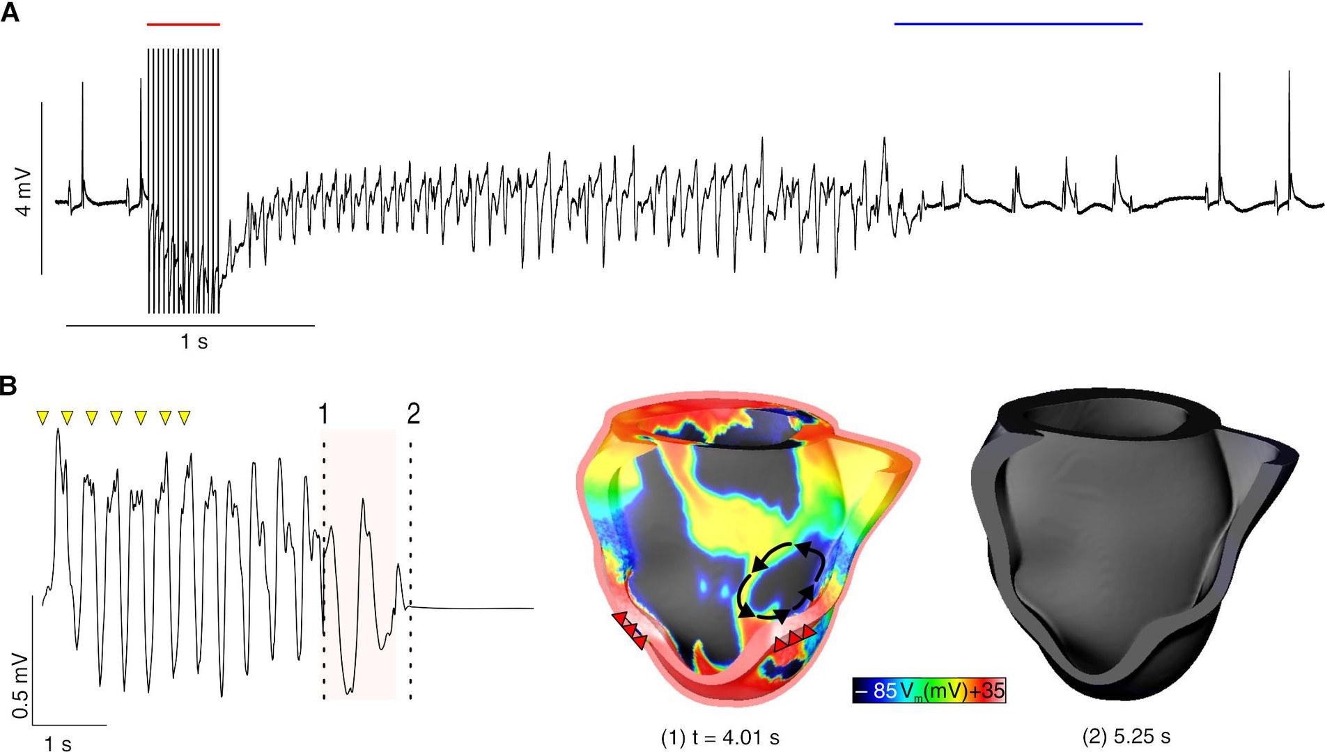 A: Optogenetische Defibrillation (blauer Balken)