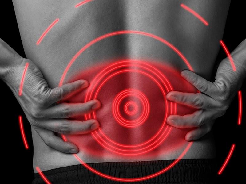Patienten-Informationstag rund um Rückenschmerzen