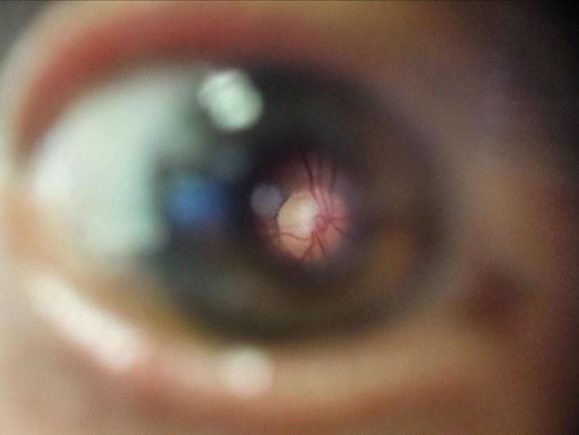 Beispiel-Bild des Augenhintergrundes mittels umgerüstetem Smartphone:
