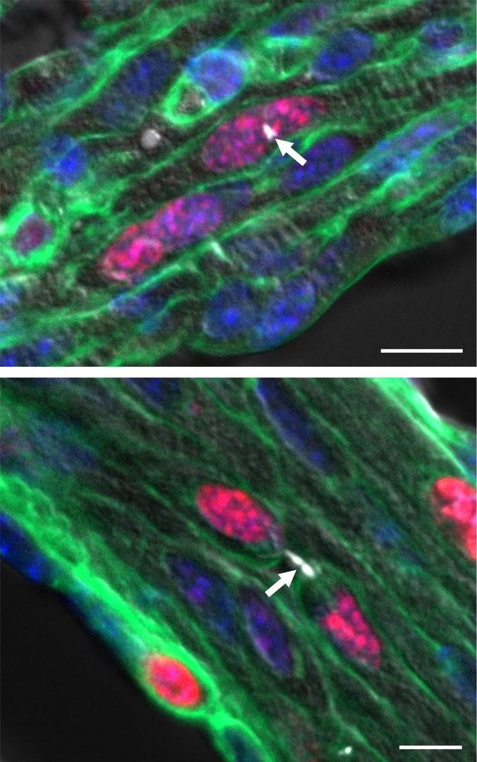 Abbildung einer mehrkernig werdenden (oben) und einer sich teilenden Herzmuskelzelle (unten)