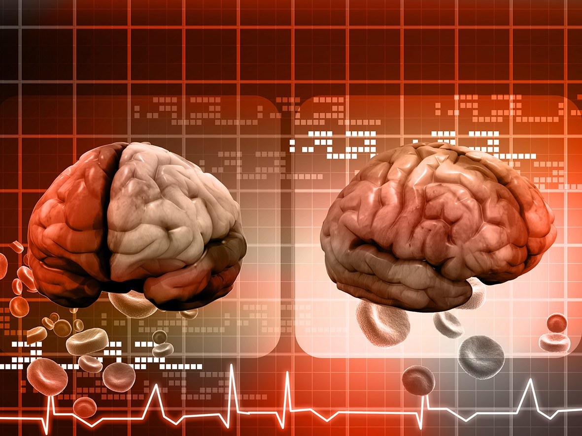 Wie lernt das Gehirn im Schlaf?