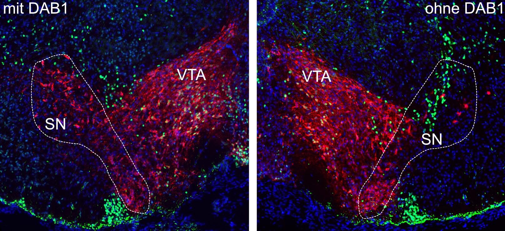 Substantia Nigra (SN) und ventrales Tegmentum (VTA) im sich entwickelnden Gehirn: