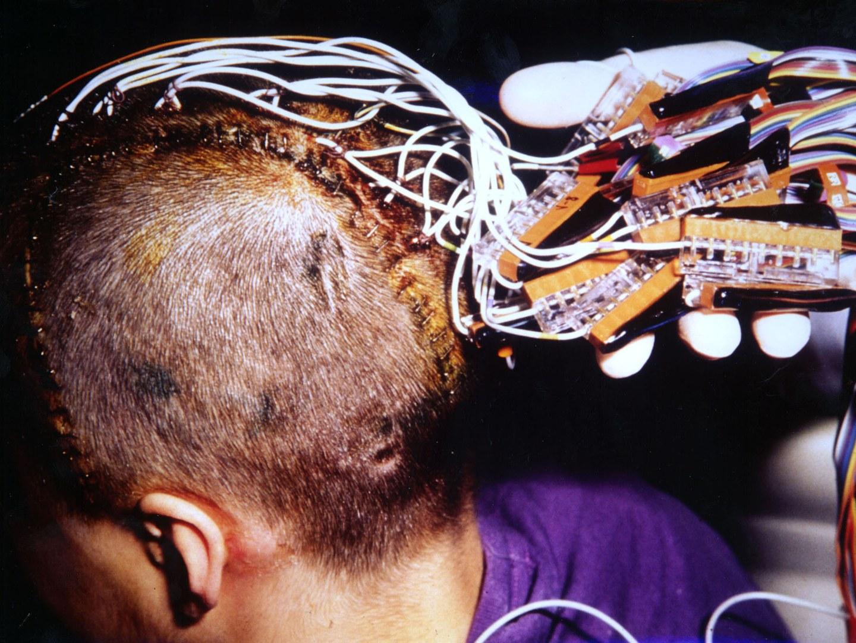 Mit bis zu 70 implantierte Elektroden