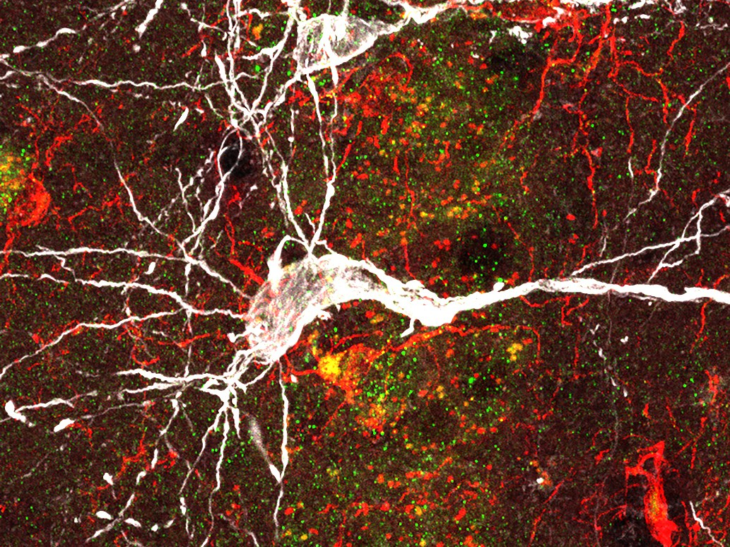 Nervenzelle (weiß) unter dem Mikroskop,