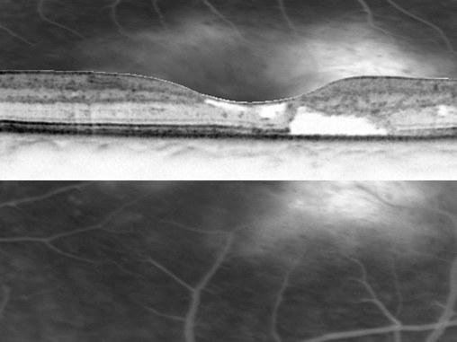 Funktionsuntersuchung mittels optischer Kohärenztomographie