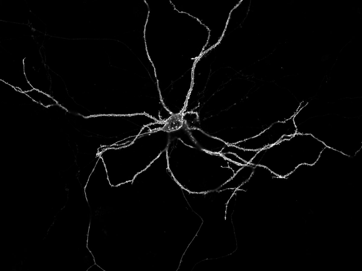 Image of a living nerve cell grown in the lab: