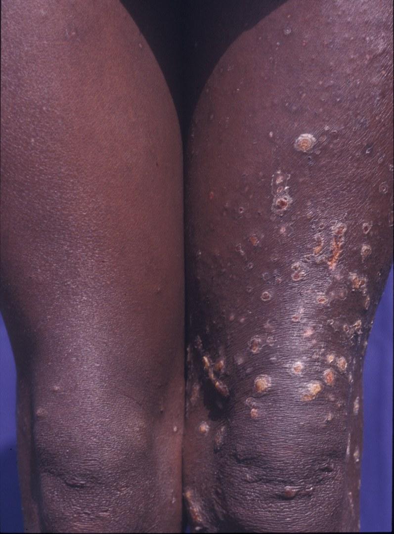 Skin damage due to worm larvae