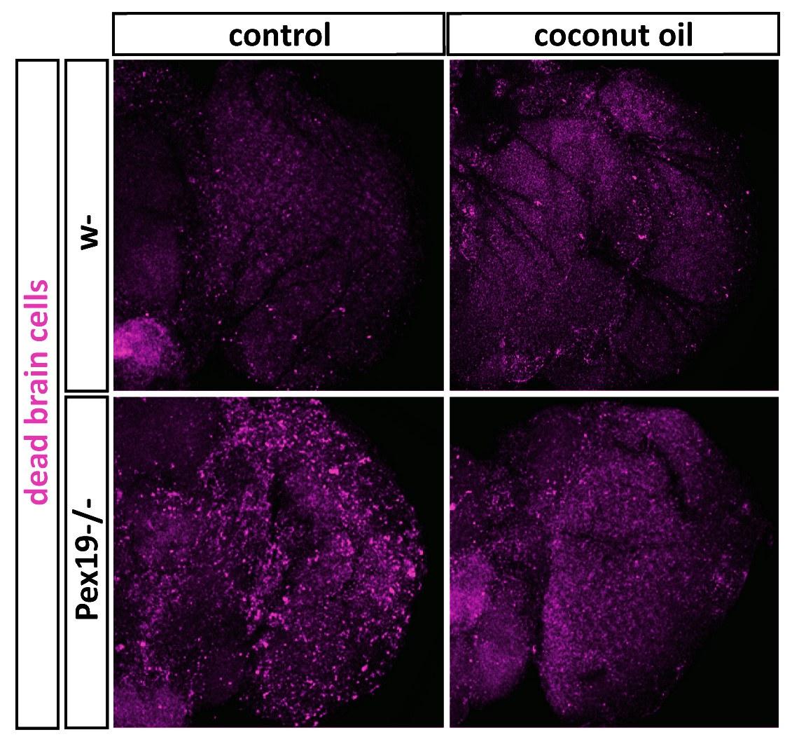 Neurodegeneration in the brain of fruit flies: