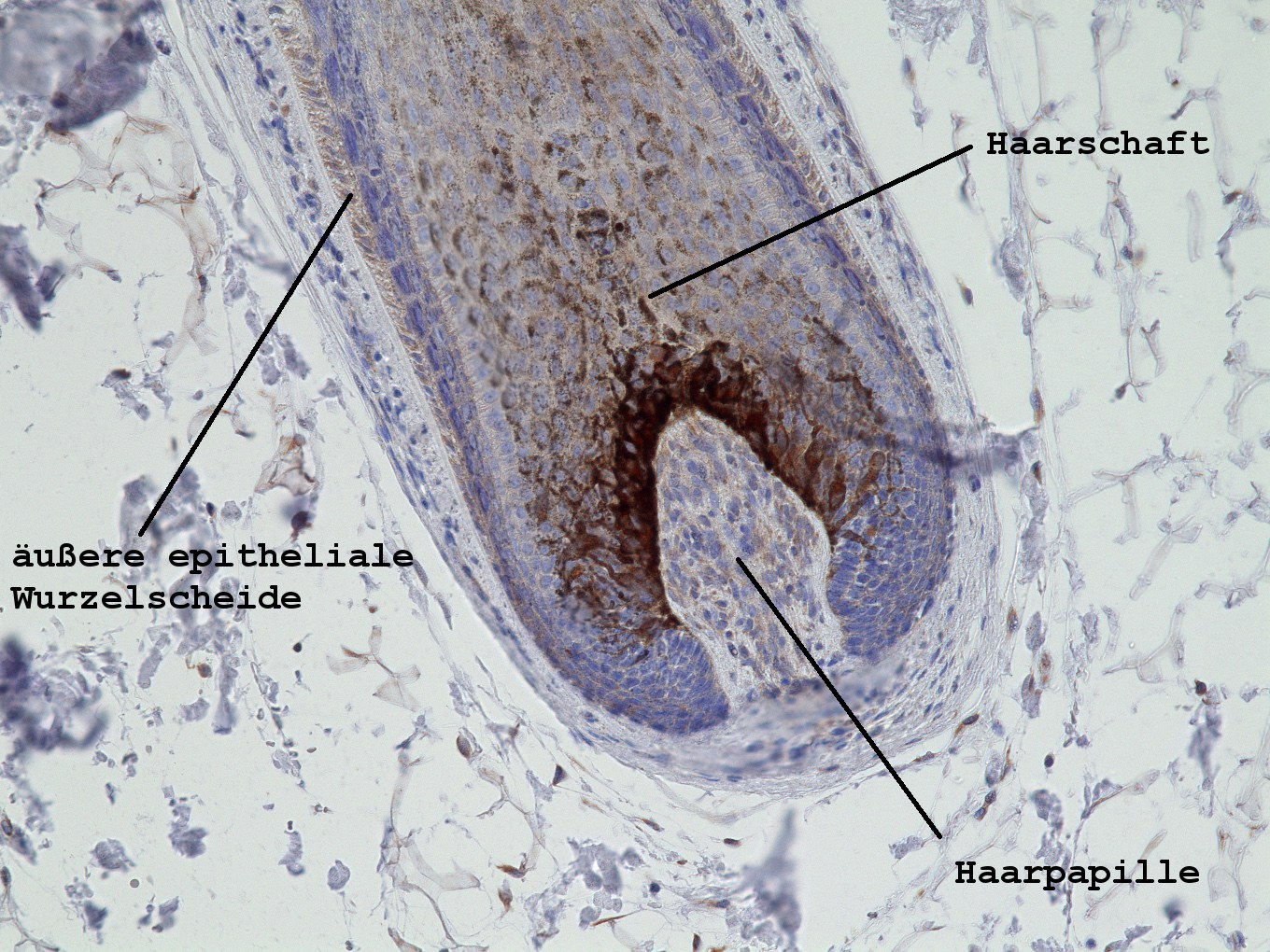 Picture of a hair growing inside the scalp: