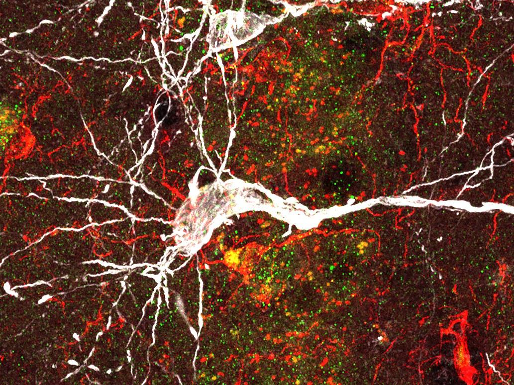 A microscopic view of a neuron (white),
